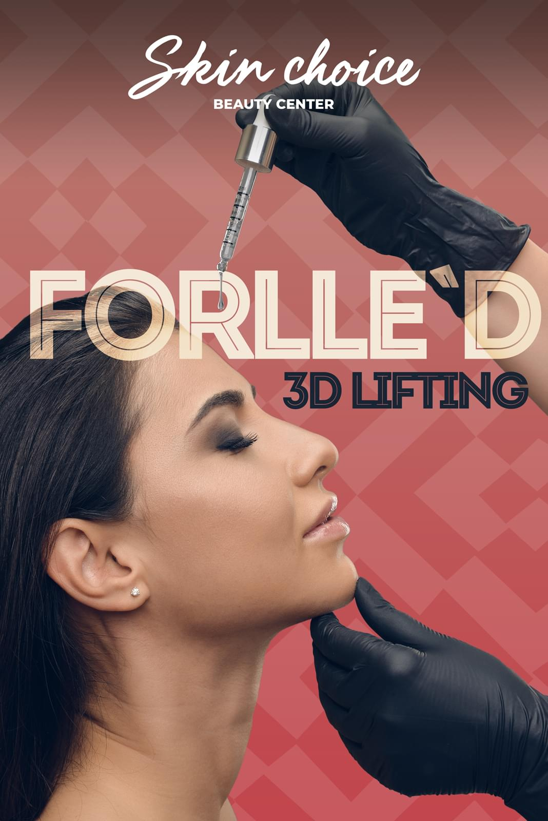 Forlle`d 3D Lifting